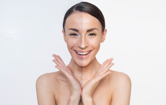 Acne. Skin problems. Two different halves of the face.